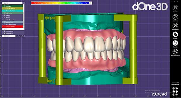 softwares CAD utilizados na odontologia