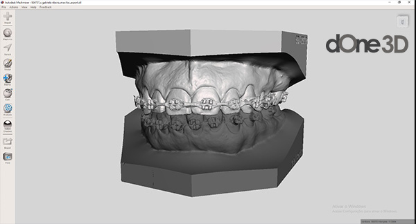 Softwares de cad utilizados na odontologia